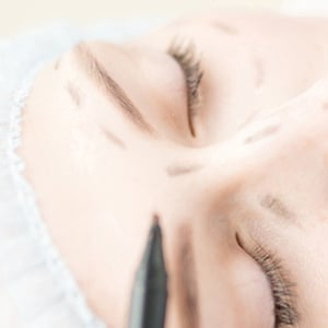 Anti wrinkle botox treatment