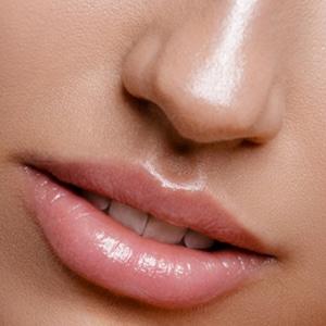 Milia Removal facial treatment
