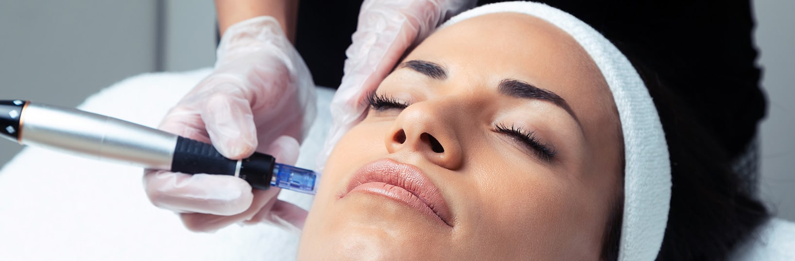 Microneedling Beauty Treatment